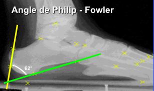 Angle de Philip-Fowler