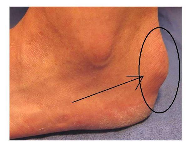 Maladie de haglund orthopedie pour tous for Douleur sur le cote exterieur du pied
