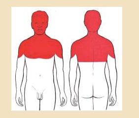 Douleurs projetées cervicale
