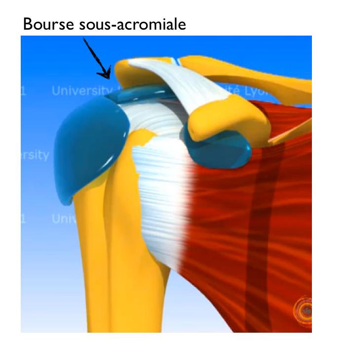 infiltrations cortisone cortico des tendons articulations peur de quoi orthopedie. Black Bedroom Furniture Sets. Home Design Ideas