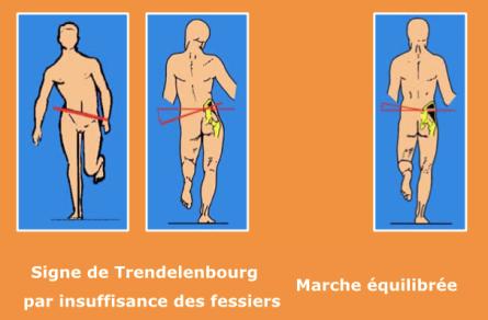 Trendelenbourg 2