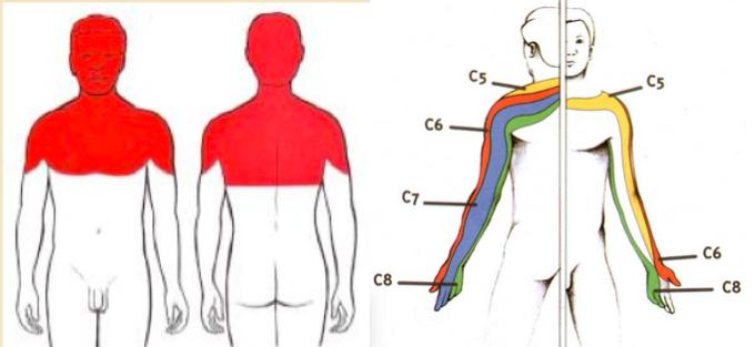 Névralgie cervico-brachiale et sciatique | ORTHOPEDIE POUR TOUS