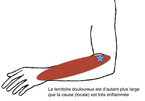Epicondylite douleur projetée